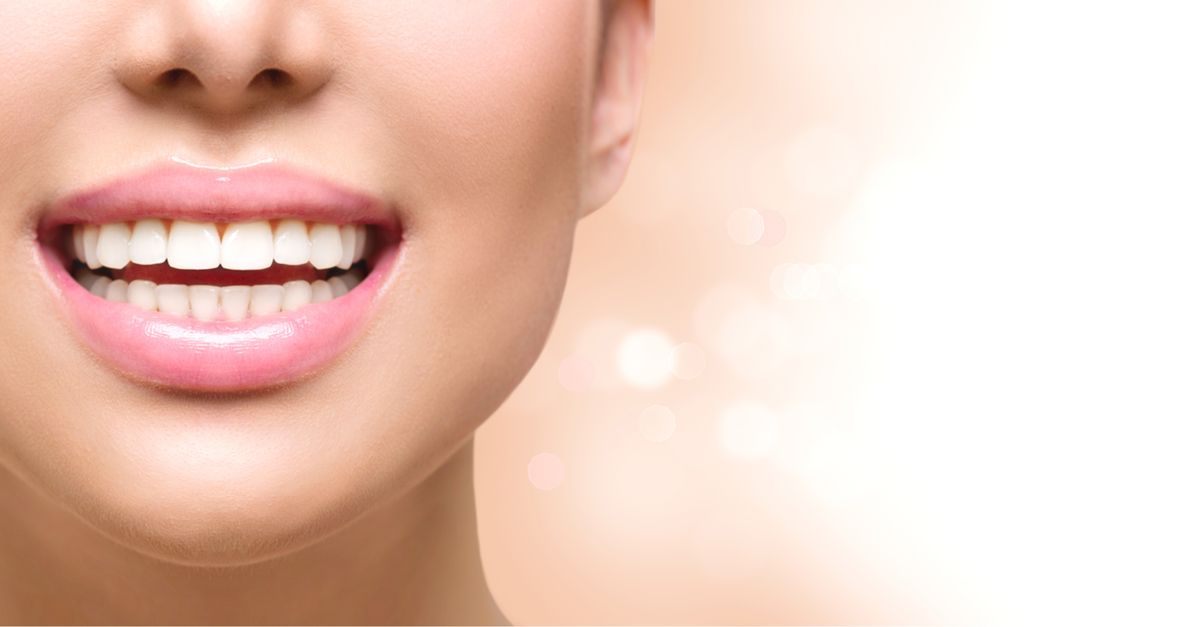 dental implants cost near me in Houston